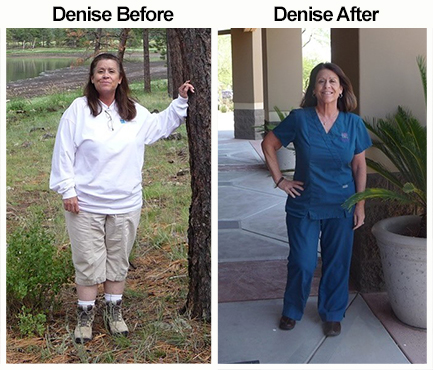woman's before and after weight loss